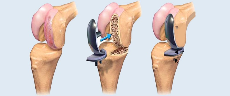 How does joint replacement increases activity and well-being in elderly individuals